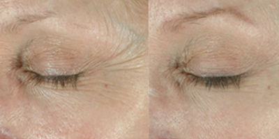 ELASTIderm Before and After