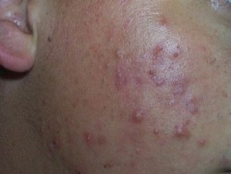 Acne Treatment St  Louis • George Dermatology