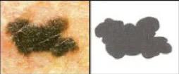 irregular border moles