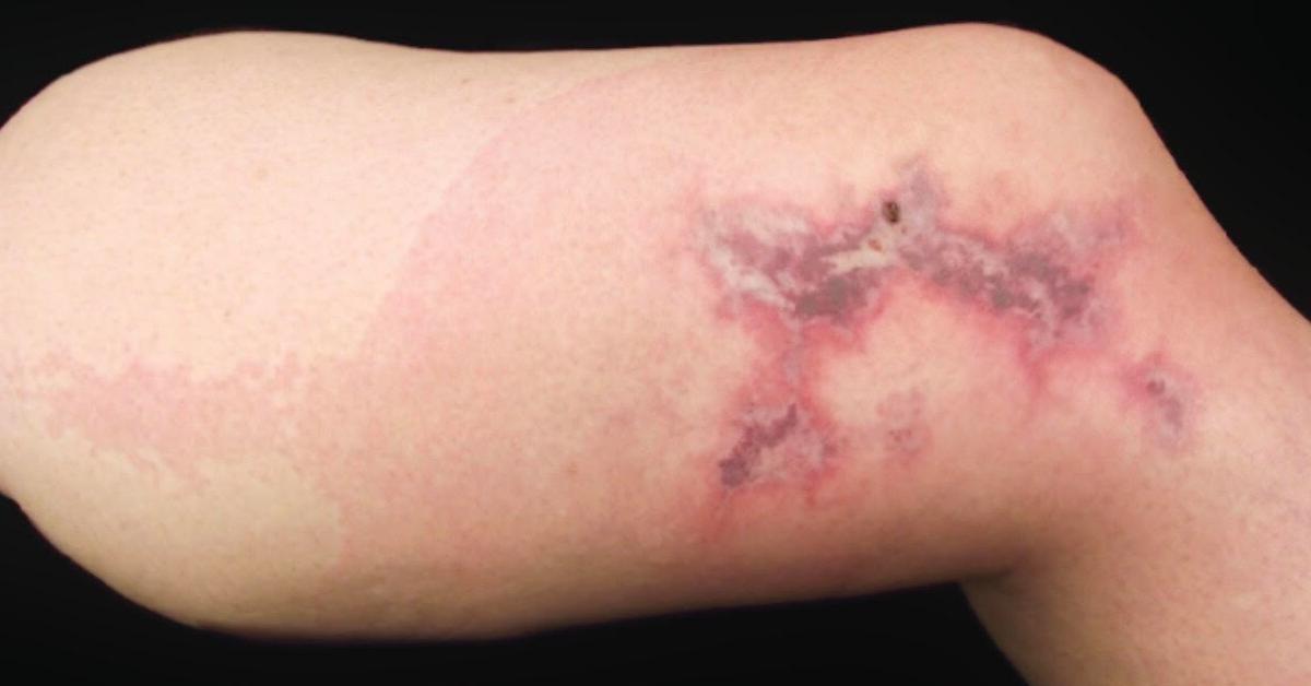 Brown Recluse Spider Bites George Dermatology