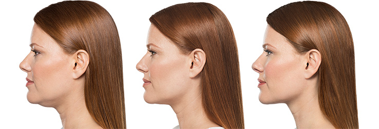 Kybella - Before and After Treatment